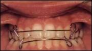 פלטה לשיניים